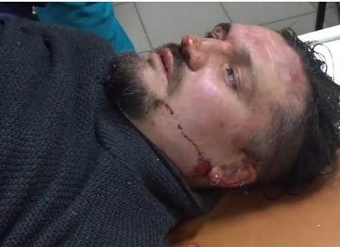 В Запорожье жестоко избили активиста по борьбе с наркоаптеками, – ФОТO, ВИДЕО
