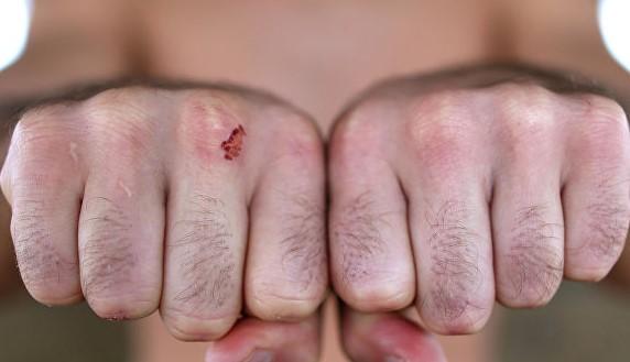 ЧП в Орехове: мужчина жестоко избил 12-летнего подростка